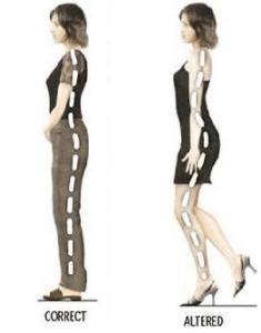 Високите токчета състаряват ставите и водят до артрит